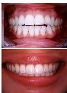 invisalign beofre and after